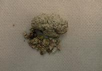 尿酸塩結石 縮小.jpg